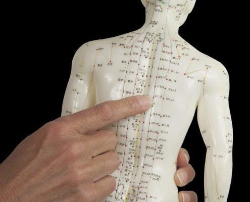 akupunktur nasıl uygulanır, Akupunktur tedavisini kimler uygulayabilir