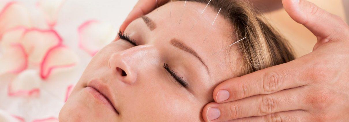 akupunktur, akupunktur ile zayıflama, migren, sigara bırakma, Antalya, akupunkturun tarihçesi
