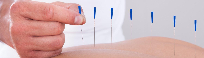 Akupunktur tedavisini kimler uygulayabilir, Akupunktur nasıl uygulanır